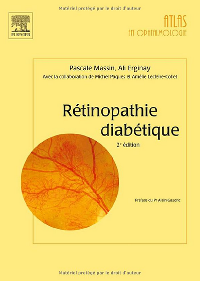 [MULTI] Rétinopathie diabétique